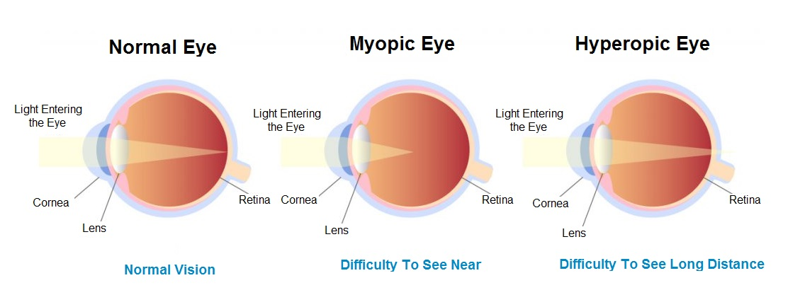 Eye Number Test Mayopia And Hyperopia
