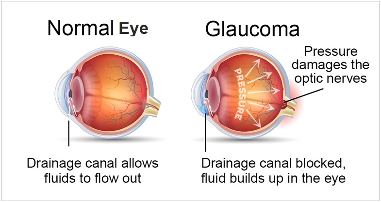what is glaucoma